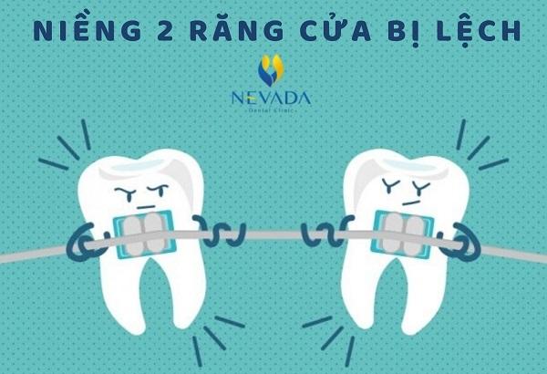 2 răng cửa bị lệch, niềng 2 răng cửa bị lệch, chỉnh 2 răng cửa bị lệch, răng cửa bị lệch