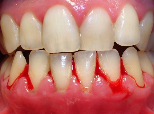 nướu bị đỏ, lợi bị đỏ, nướu răng bị đỏ, nướu bị sưng đỏ, nướu chân răng bị đỏ, lợi răng bị đỏ, nướu răng bị sưng đỏ, lợi chân răng bị đỏ, nướu răng của bé bị đỏ