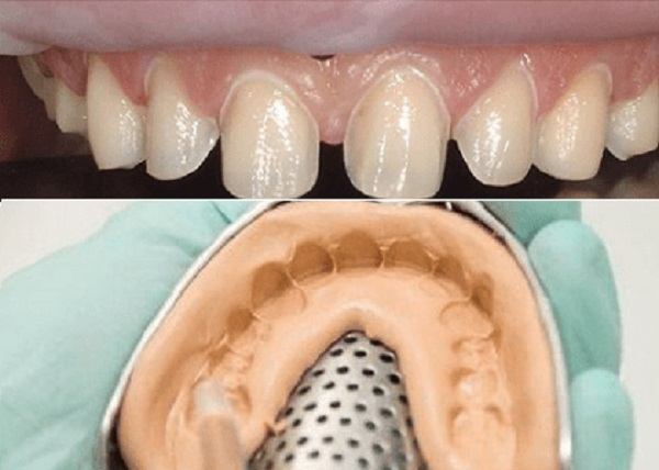 quy trình bọc răng sứ mất bao lâu thời gian, bọc răng sứ mất bao lâu, quy trình bọc răng sứ mất bao lâu, quá trình bọc răng sứ mất bao lâu, bọc răng sứ mất bao lâu, bọc răng sứ mất bao nhiêu lâu, bọc răng sứ mất thời gian bao lâu, bọc răng sứ thẩm mỹ mất bao lâu, làm răng bọc sứ mất bao lâu, bọc răng sứ làm trong bao lâu