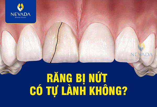 Răng bị nứt, răng bị nứt có tự lành, răng bị nứt có lành lại không, răng bị nứt nhẹ, răng bị nứt nên làm gì, răng bị nứt có sao không, răng bị nứt chân phải làm sao, răng bị nứt đôi, răng bị nứt vỡ, răng bị nứt chân