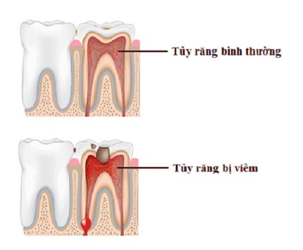 chữa tủy bọc sứ, chữa tủy bọc răng sứ, điều trị tủy răng bọc sứ, răng chữa tủy có bọc sứ được không