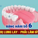 Răng hàm số 6 bị lung lay | Nguyên nhân và cách khắc phục hiệu quả