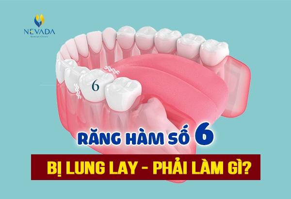 răng số 6 bị lung lay, răng hàm số 6 bị lung lay, răng hàm số 6 lung lay, răng số 6 lung lay