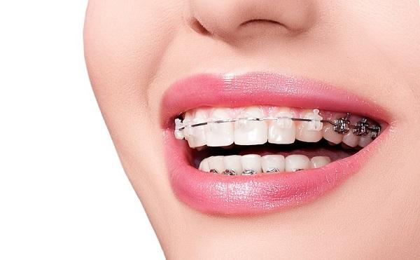răng nhỏ và thưa, đàn ông răng thưa và nhỏ, răng thưa và nhỏ