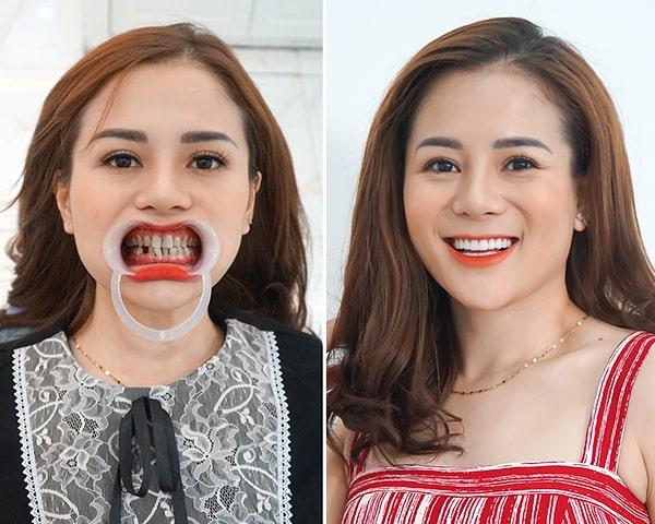sao việt làm răng ở đâu, sao việt làm răng, các sao việt làm răng ở đâu, sao việt làm răng sứ ở đâu