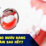 Sưng nướu răng làm sao hết? Cách điều trị sưng nướu răng tại nhà hiệu quả