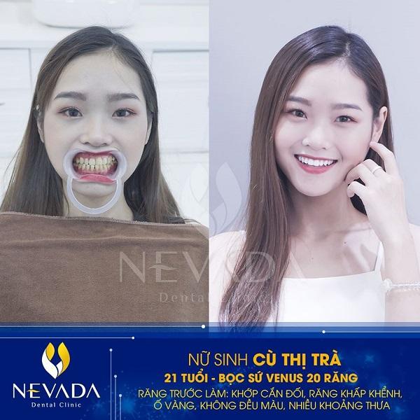 tại sao không nên bọc răng sứ, tại sao không nên bọc răng sứ giá rẻ