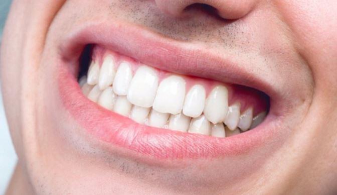 số răng của người trưởng thành, tổng số răng của người trưởng thành, số lượng răng của người trưởng thành, số răng đầy đủ của người trưởng thành, số răng hàm dưới của người trưởng thành