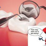 """Trám răng thẩm mỹ có bền không? """"Của bền do người"""" răng bền do đâu?"""