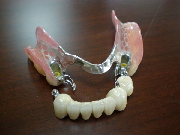 răng cửa tháo lắp, răng cửa giả tháo lắp, trồng răng cửa tháo lắp