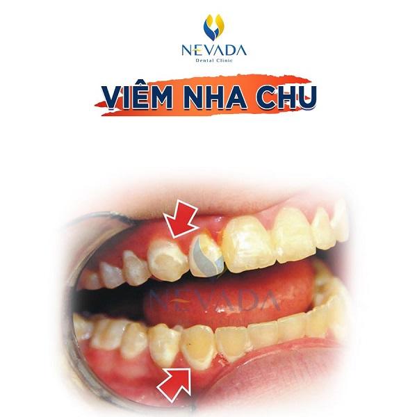xem tướng răng chó, tướng răng chó, tướng người răng chó, răng chó của người, răng chó ở người, răng chó của người