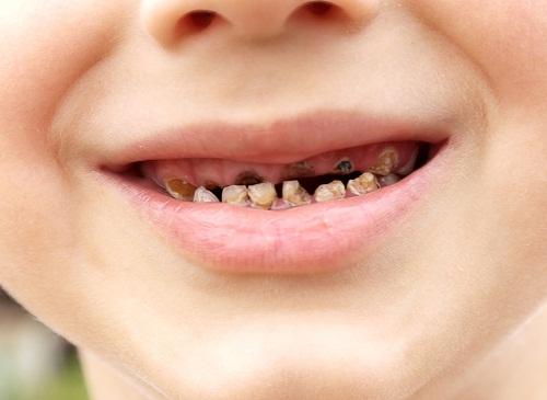 Áp xe răng ở trẻ em