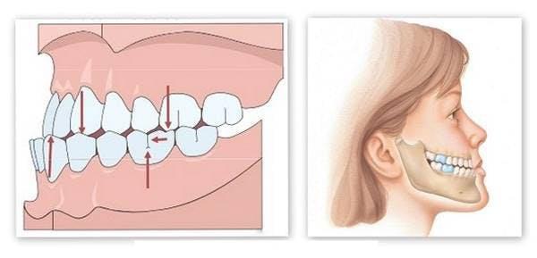 bọc răng sứ bị lệch khớp cắn