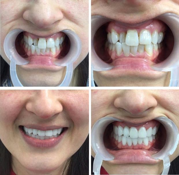 bọc răng sứ có ảnh hưởng gì không, bọc răng sứ thẩm mỹ có ảnh hưởng gì không, bọc răng sứ có tốt không, bọc răng sứ có ảnh hưởng gì không, bọc răng sứ có an toàn không, bọc răng sứ có ảnh hưởng đến sức khoẻ không
