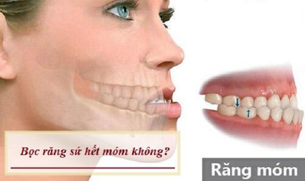 bọc răng sứ có hết móm không, bọc răng sứ có hết móm