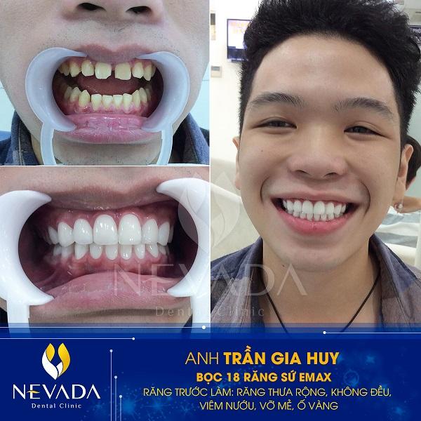 Bọc răng sứ hàm dưới