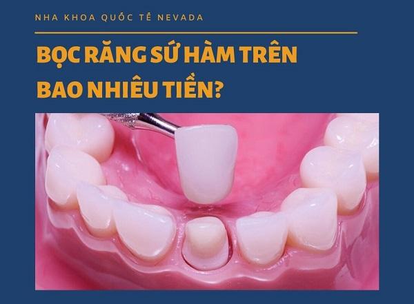 bọc răng sứ hàm trên bao nhiêu tiền