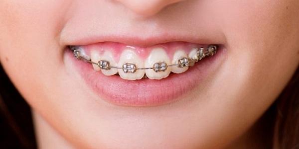 cách chữa cười hở lợi tại nhà