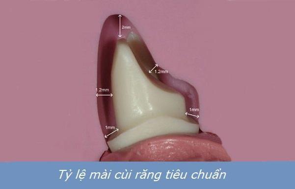 cách làm răng cửa nhỏ lại tại nhà