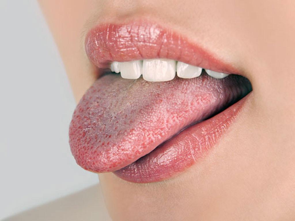 lưỡi bị vàng là bệnh gì, mặt lưỡi bị vàng là bệnh gì, lưỡi bị vàng và rát, lưỡi bị vàng phải làm sao, lưỡi bị vàng, lưỡi bị rêu vàng, lưỡi trẻ bị vàng, lưỡi bị bám vàng, lưỡi hổ bị vàng lá, lưỡi bị trắng vàng