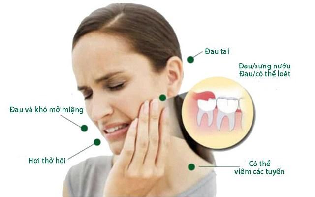 mọc răng khôn đau họng, mọc răng khôn viêm họng, mọc răng khôn bị đau họng, mọc răng khôn gây đau họng, mọc răng khôn có đau họng không, mọc răng khôn kèm đau họng, mọc răng khôn và đau họng, mọc răng khôn có gây đau họng, mọc răng khôn gây viêm họng