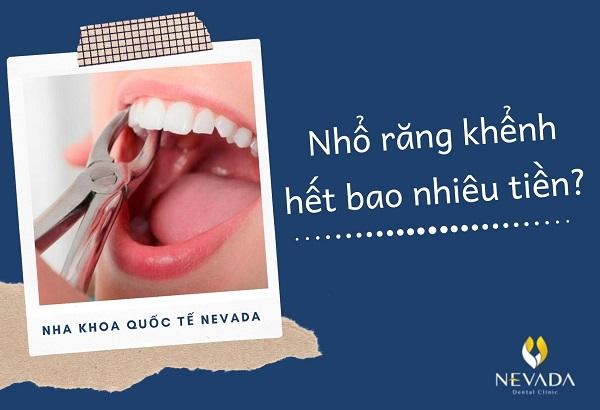 nhổ răng khểnh bao nhiêu tiền, nhổ răng khểnh hết bao nhiêu tiền, nhổ răng khểnh mất bao nhiêu tiền