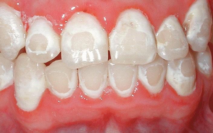 Bị tụt lợi chân răng có điều trị được không