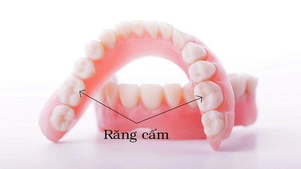 răng cấm mọc lệch có nên nhổ không, răng khôn mọc lệch có nên nhổ không, răng khôn mọc lệch có phải nhổ không, răng cấm mọc lệch có phải nhổ không