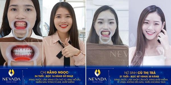 răng inox có tốt không, răng inox là gì, răng inox, bọc răng inox, niềng răng inox đơn giản, bọc răng inox bao nhiêu tiền, răng sứ inox