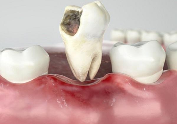 sâu răng hôi miệng phải làm sao, sâu răng hôi miệng, sâu răng gây hôi miệng, trị sâu răng hôi miệng, sâu răng bị hôi miệng, chữa sâu răng hôi miệng, sâu răng làm hôi miệng