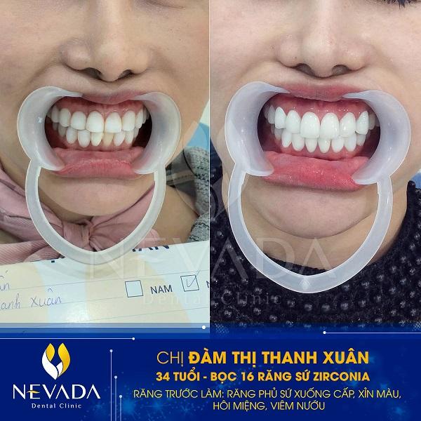 Bọc sứ răng hàm giá bao nhiêu tiền
