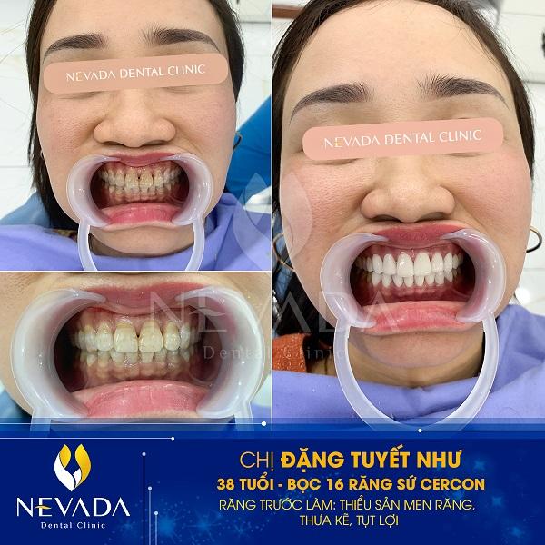 cách làm răng đều đẹp tại nhà, cách làm răng đều đẹp, cách làm răng đều và đẹp