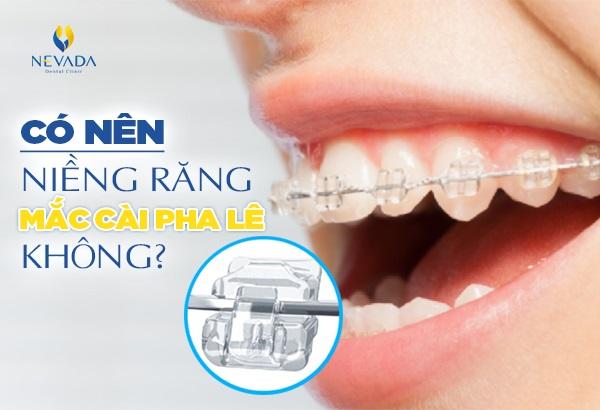 Có nên niềng răng mắc cài pha lê không