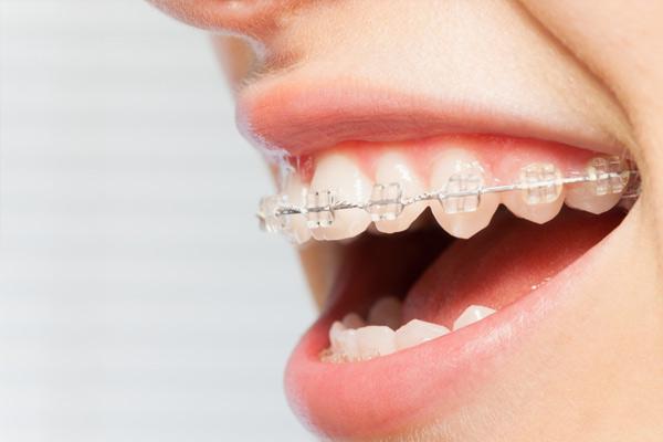 Có nên niềng răng mắc cài sứ không