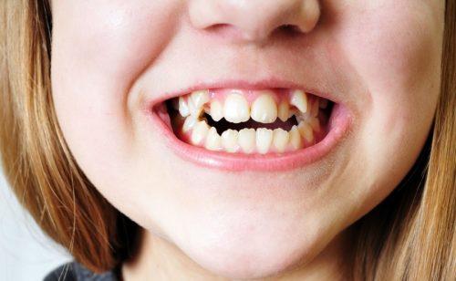 dấu hiệu trẻ mọc răng khểnh