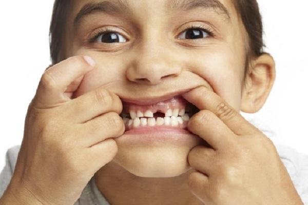 Hiện tượng mòn răng ở trẻ em
