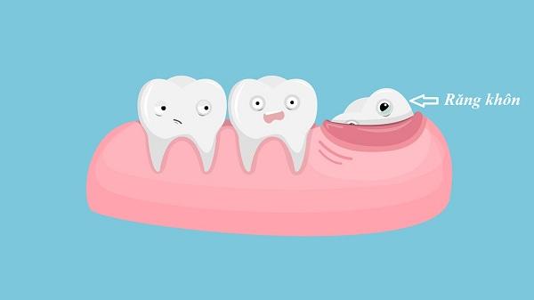 """Liều mình nhổ 4 răng khôn cùng lúc – Người đàn ông nhận được cái kết không thể """"đắng"""" hơn"""
