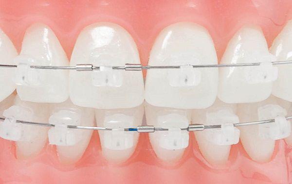 Niềng răng mắc cài cổ điển – Thời gian làm nên đẳng cấp!