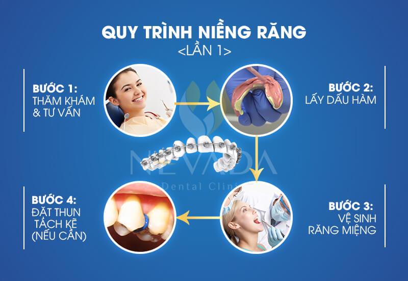 quy trình niềng răng khểnh, quá trình niềng răng khểnh