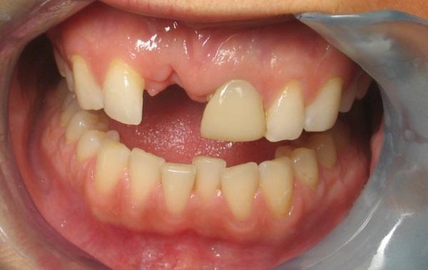 răng càng ngày càng thưa, răng cửa càng ngày càng thưa, tại sao răng càng ngày càng thưa, vì sao răng càng ngày càng thưa