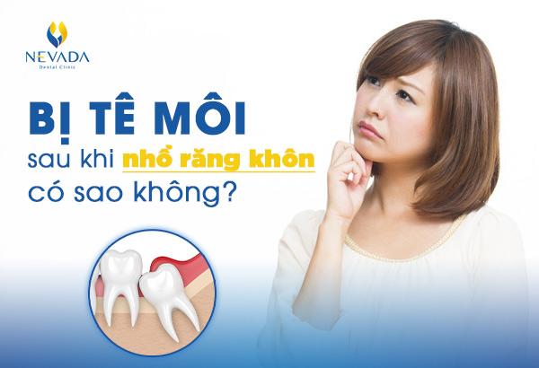 bị tê môi sau khi nhổ răng khôn, Nhổ răng khôn bị tê môi