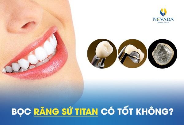 Bọc răng sứ Titan có tốt không, răng sứ titan có tốt không, răng titan có tốt không, răng sứ titan có tốt ko, làm răng sứ titan có tốt không, răng sứ kim loại titan có tốt không