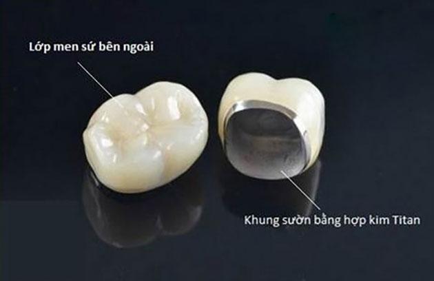 Bọc răng sứ Titan sử dụng được bao lâu, bọc răng sứ titan được bao lâu, Tuổi thọ răng sứ Titan, Tuổi thọ của răng sứ Titan, răng sứ titan sử dụng được bao lâu, Bọc răng sứ Titan có bền không