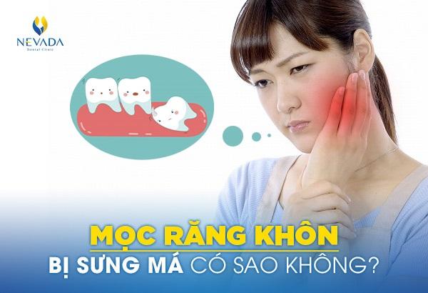 mọc răng khôn bị sưng má, mọc răng khôn bị sưng mặt, bị sưng má khi mọc răng khôn, mọc răng khôn có bị sưng má không, mọc răng khôn sưng má
