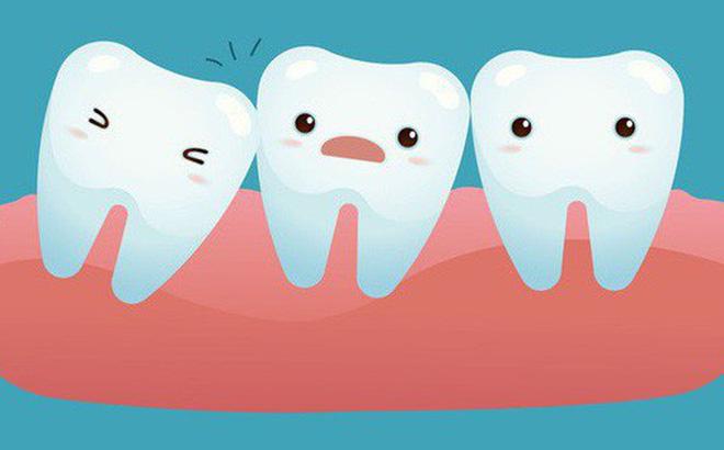 mọc răng khôn sớm, tại sao lại mọc răng khôn sớm, răng khôn mọc sớm, mọc răng khôn sớm có tốt không, mọc răng khôn sớm thì sao, mọc răng khôn sớm có sao không
