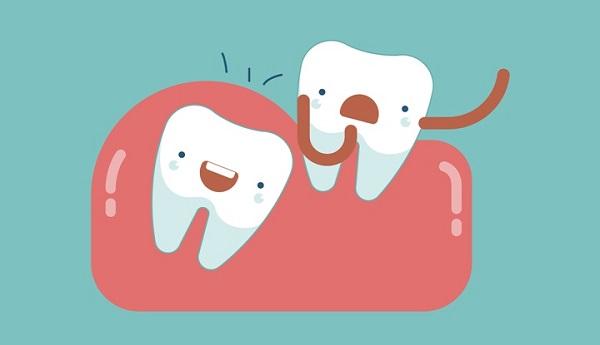 Mọc răng khôn sưng lợi có mủ