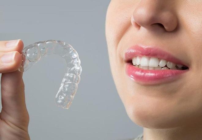 niềng răng không mắc cài d-aligner, niềng răng không mắc cài thẩm mỹ d-aligner