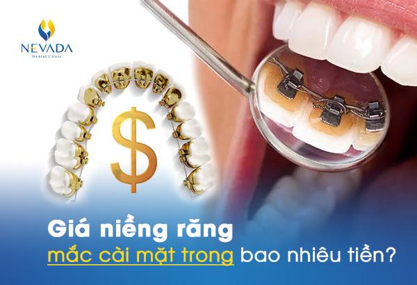 niềng răng mắc cài mặt trong bao nhiêu tiền, giá niềng răng mắc cài mặt trong, phương pháp niềng răng mắc cài mặt trong, chi phí niềng răng mắc cài mặt trong