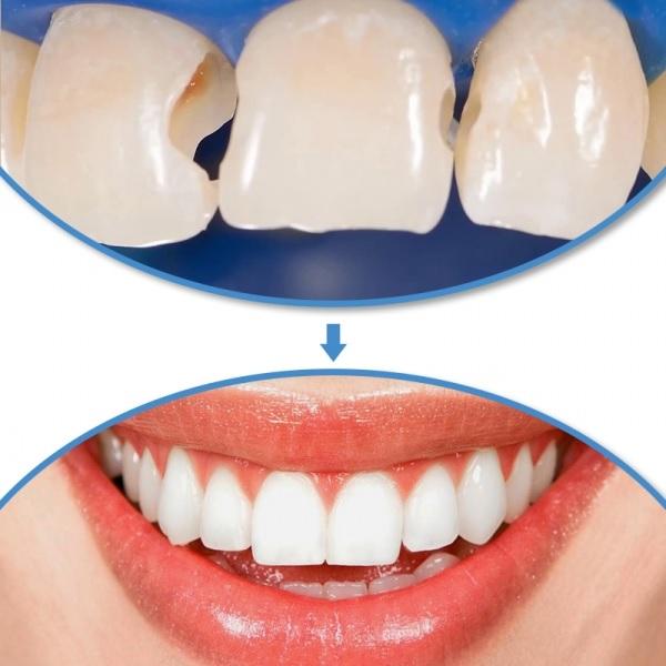 Răng có vết nứt dọc, răng cửa bị nứt dọc