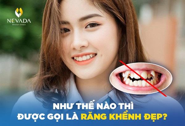 răng khểnh đẹp hay xấu, răng khểnh đẹp trai, răng khểnh đẹp nam, mẫu răng khểnh đẹp, hàm răng khểnh đẹp, làm răng khểnh đẹp, có răng khểnh đẹp hay xấu, ảnh răng khểnh đẹp, hình ảnh răng khểnh đẹp, các mẫu răng khểnh đẹp, có răng khểnh đẹp hay xấu, những mẫu răng khểnh đẹp, hình răng khểnh đẹp